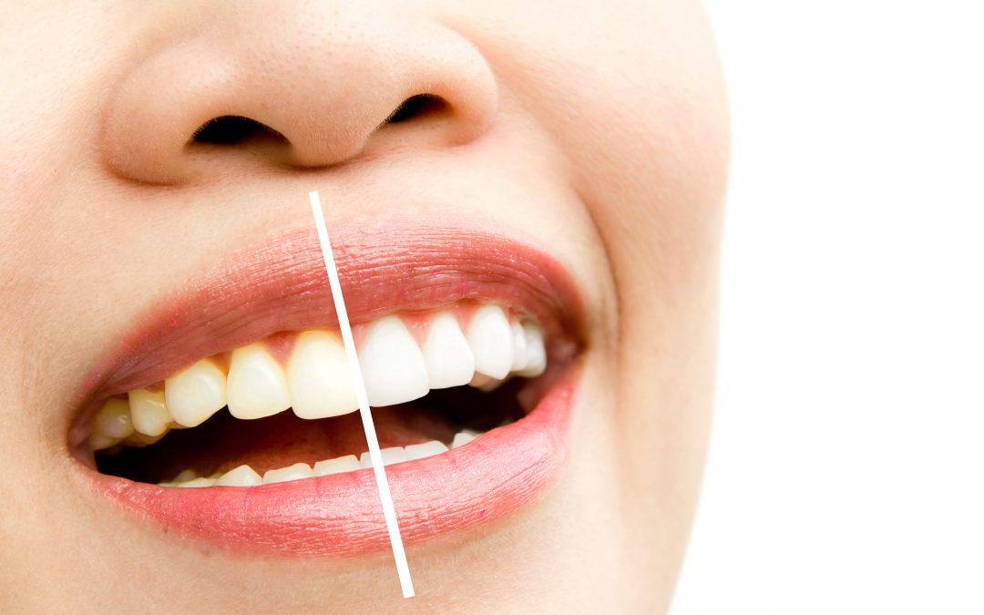 Escurecimento dos dentes? Veja 4 opções para ajudar seu paciente!