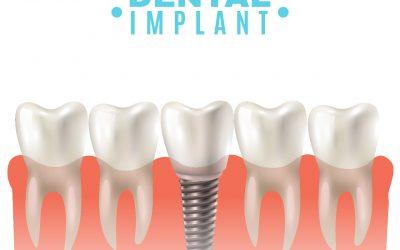 Não passe apuros com implantes dentários!