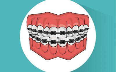 5 fatos sobre Ortodontia que talvez você não saiba!